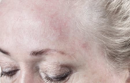 Woman´s scaly forehead